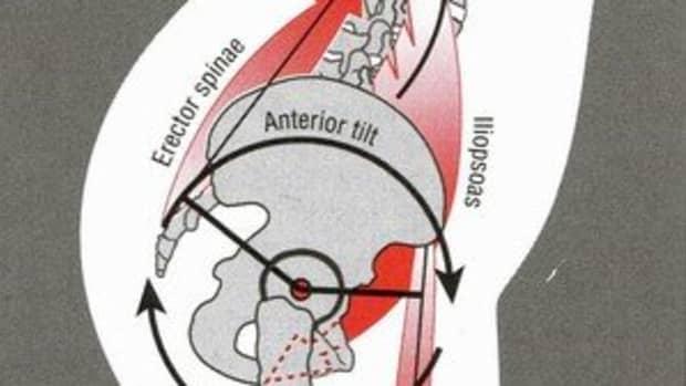 fix-anterior-pelvic-tilt