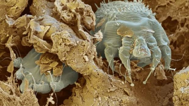 scabies-symptoms-treatment-natural-remedies-and-prevention