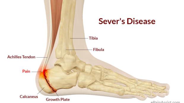 understanding-severs-disease-and-gymnastics
