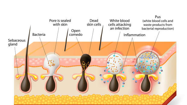 things-you-probably-didnt-know-about-acne