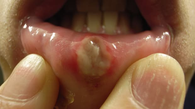 causes-and-natural-remedies-for-canker-sores