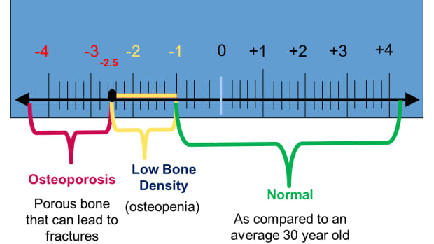 osteoporosis-and-bone-loss-can-be-turned-around-naturally