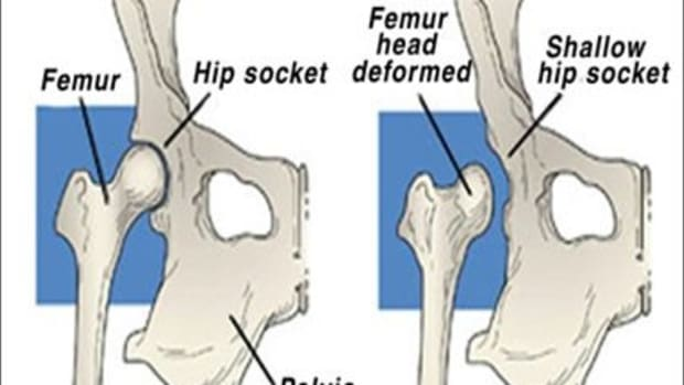 guide-to-hip-dysplasia-in-dogs