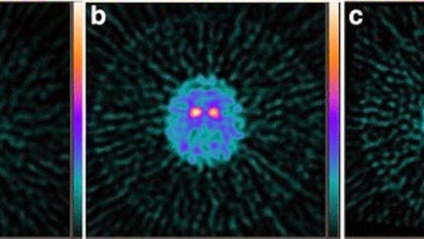parkinsons-disease-the-alien-in-my-brain