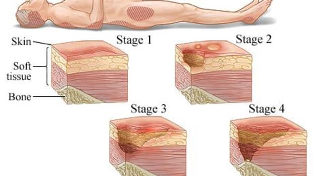 pressure-ulcers
