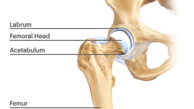 how-bilateral-hip-replacements-changed-my-life