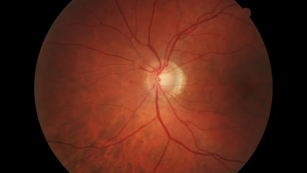 retinal-detachment-versus-vitreous-detachment