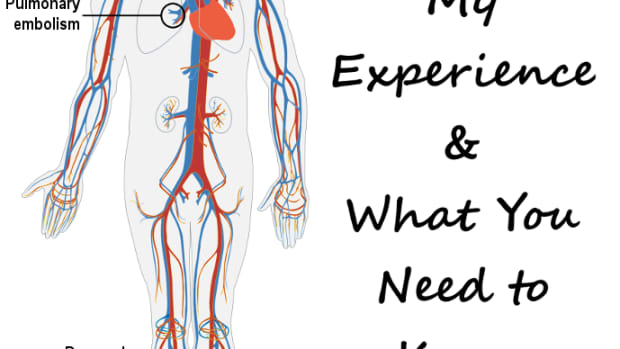 dvt-and-pe-causes-symptoms-treatment-and-prophylaxis