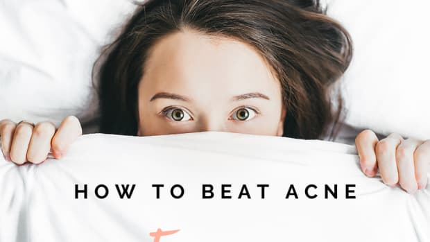 three-solutions-to-solve-your-acne-forever