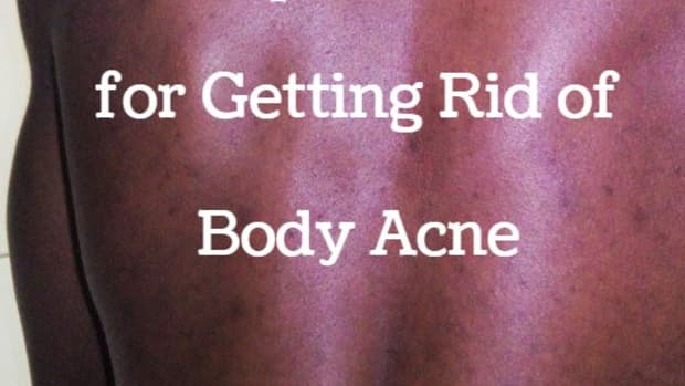get-rid-of-body-acne-naturally-at-no-extra-cost