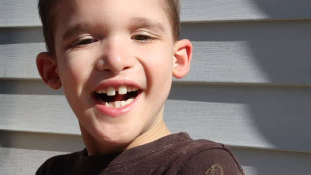 5-reasons-for-a-special-needs-trust