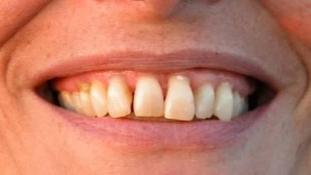 how-to-manage-gum-disease-naturally