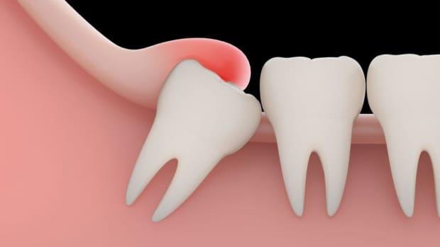 clove-oil-a-cure-for-dental-pain