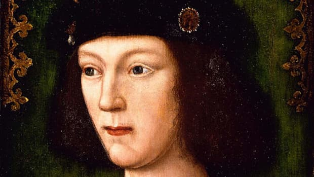 did-king-henry-viii-have-a-genetic-abnormality
