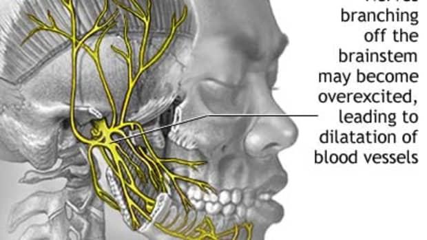 migrain-headaches-treatments