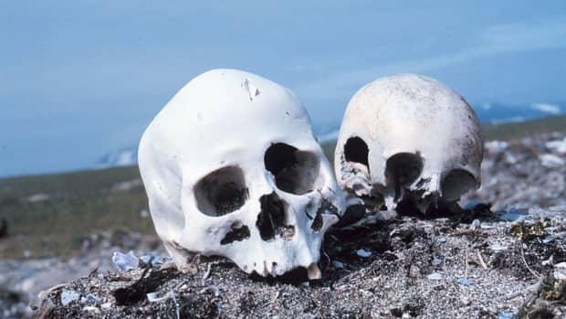Bones can be evidence (public domain).