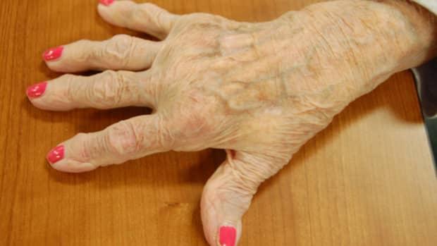 Arthritic hand. Photo by my brother.  Vernatopia.com.