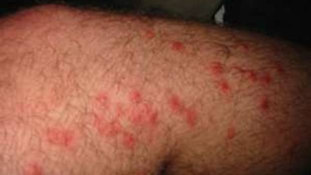 the-best-poison-ivy-poison-oak-sumac-and-bug-bite-cures