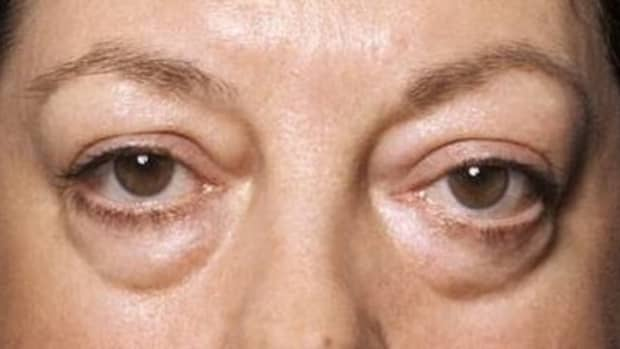 get-help-for-those-bags-under-your-eyes