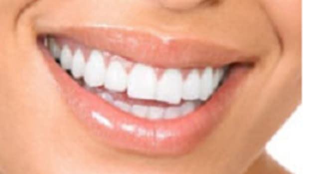 how-to-whiten-your-teeth-naturally-at-home