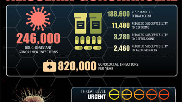 a-new-super-bug-worse-then-aids-kills-within-days