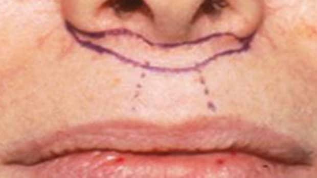 lip-enhancement-augmentation