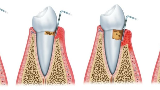 how-to-protect-against-gum-disease-problems