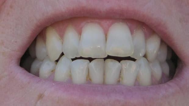 does-regenerate-toothpaste-really-work-to-rebuild-enamel-and-repair-tooth-enamel-erosion