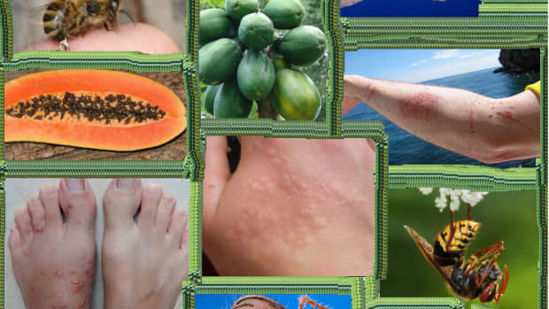 relieve-bee-wasp-and-jellyfish-stings-easily-with-papaya-enzyme