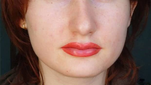 glycolic-acid-tattoo-removal-best-products-for-safely-removing-cosmetic-eyebrow-tattoos