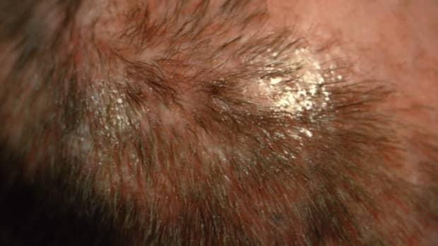 3-tips-thinning-hair