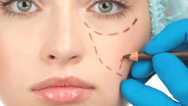 cosmetic-surgery-risks-and-rewards
