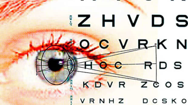 lasik-sunglasses-what-you-need-to-know-post-lasik-surgery