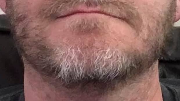 when-will-i-be-able-to-grow-a-beard