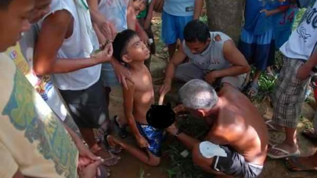 male-circumcision-in-the-philippines-why-the-health-department-requires-it