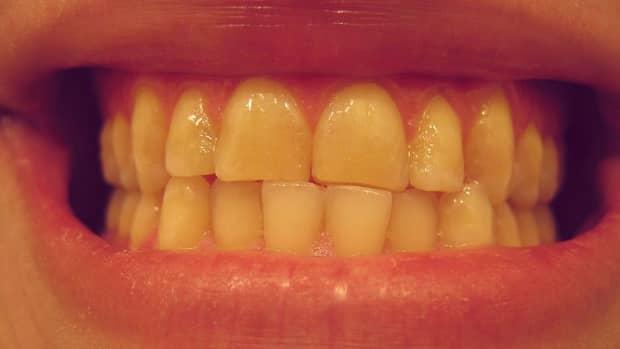 get-rid-of-yellow-teeth