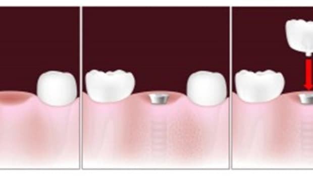 tooth-implant-facts-and-info