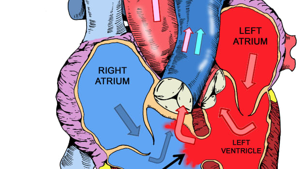 left-to-right-shunt-lesions-ventricular-septal-defect-vsd