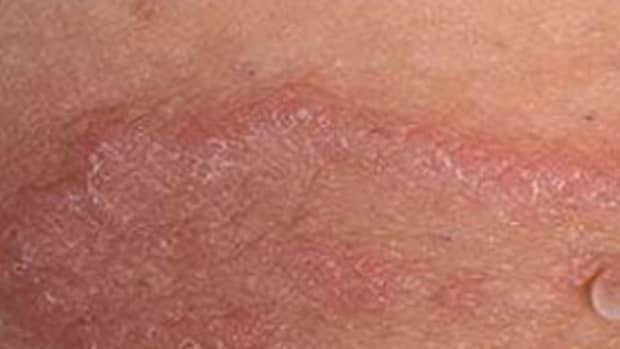 what-is-jock-itch-and-what-to-do-about-that-red-itchy-penile-skin