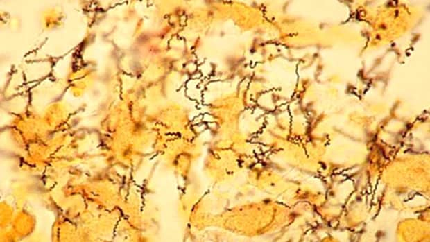 syphilis-symptoms-and-treatment