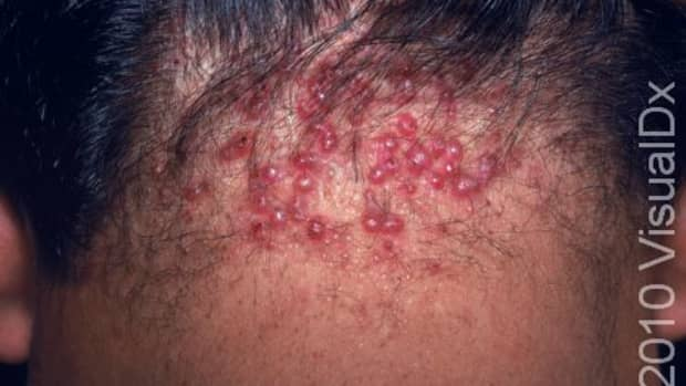 nasty-bumps-on-the-back-of-your-head-what-are-they-and-how-to-get-rid-of-them