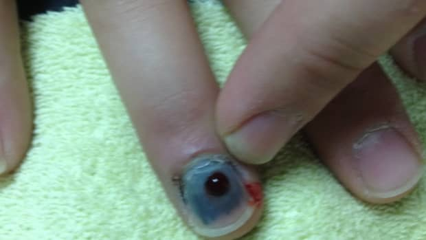 how-to-treat-blood-under-the-nail