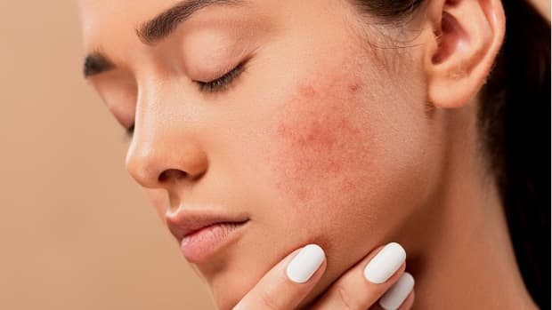 essential-oils-and-phototoxicity-safety-first