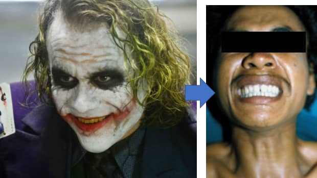 when-the-jokers-death-grin-is-real