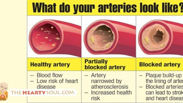 information-foods-and-tips-for-reducing-high-cholesterol