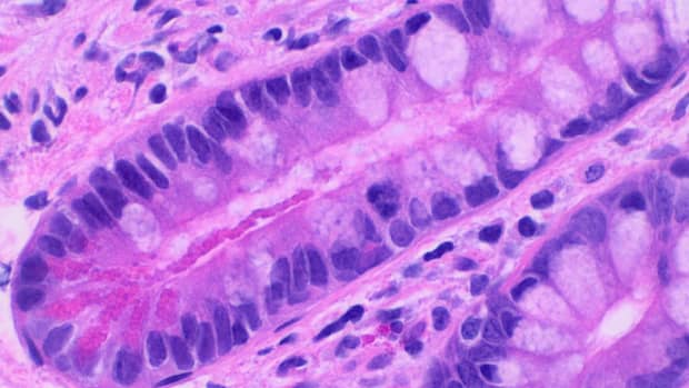 paneth-cells-in-intestinal-glands-and-inflammatory-bowel-disease