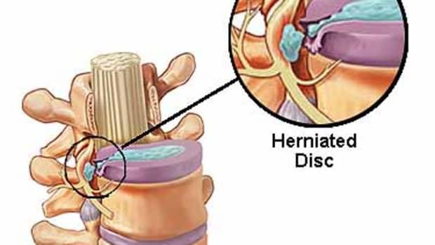 herniated-disc-treatment