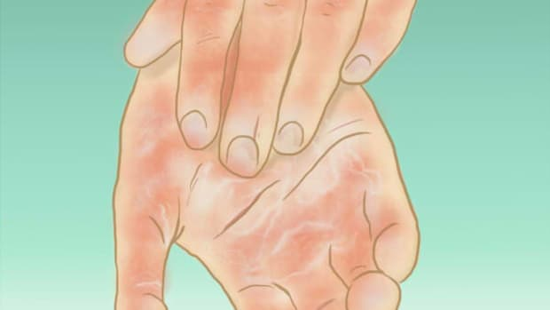 how-to-deal-with-bad-circulation-