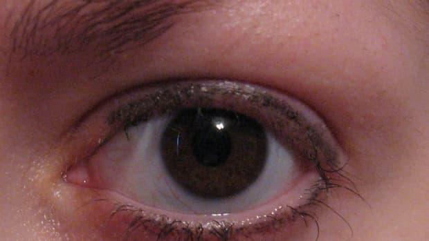 My trichotillomania: pulling out my eyelashes