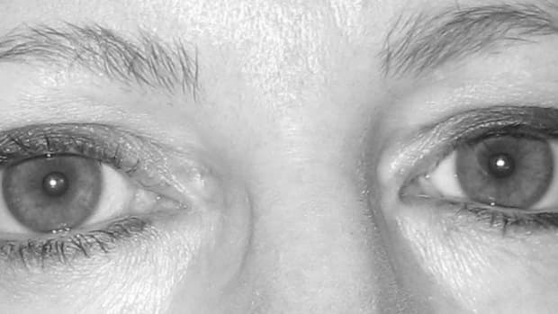 My eyes today, looking straight ahead.